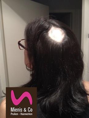 alopecia, haarstukje, natuurlijk, westland en Delft