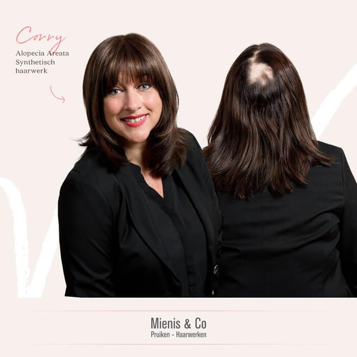 alopecia, alopecia areata, pruik kopen, haarwerk kopen, pruik, haarwerk, haarverlies