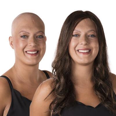 alopecia totalis, haaruitval, haarziekte, haarproblemen, haarwerk, haarwerken, pruik, pruiken