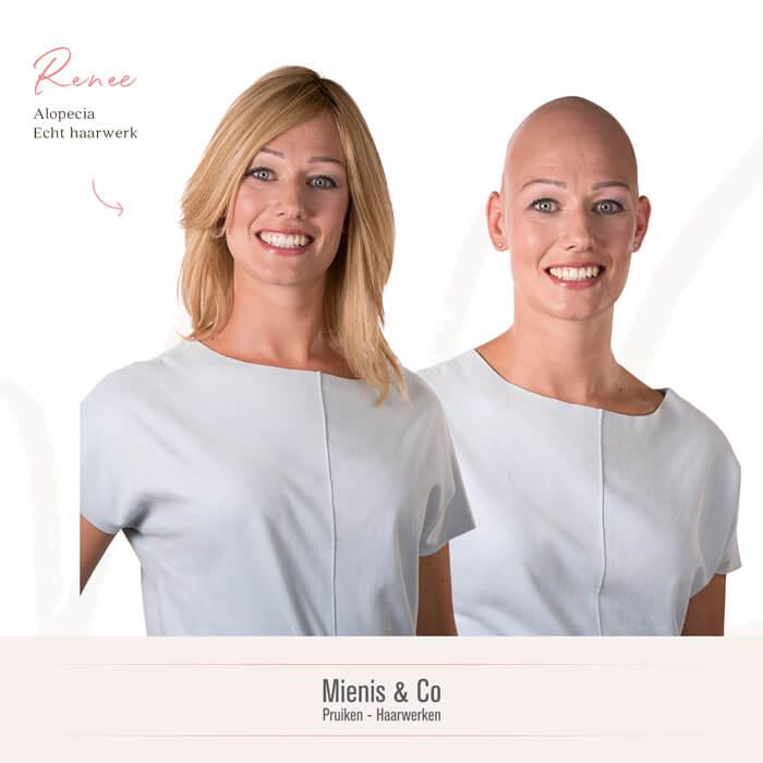 Echthaar, haarwerk, alopecia totalis, haarwerk, haarwerken, pruiken, pruik kopen