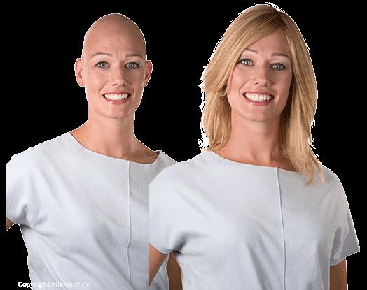 echt haar haarwerk, pruiken, pruik, alopecia totalis, mienis & Co Pruiken - Haarwerken