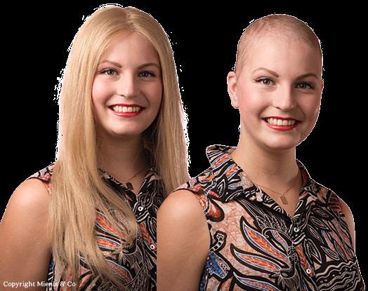 eierstokkanker, jonge vrouw, haarstuk, pruik, haarverlies, chemotherapie