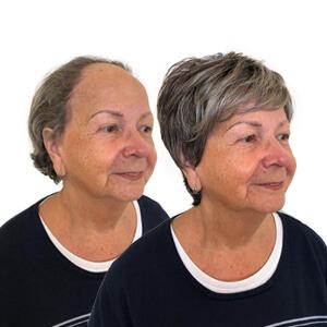 frontale fibroserende alopecia, haarstuk, haarstukje, synthetisch haarwerk, mienis pruiken, delft, monster